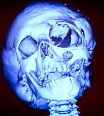 Three dimensional (3-D) computed tomography (CT) s