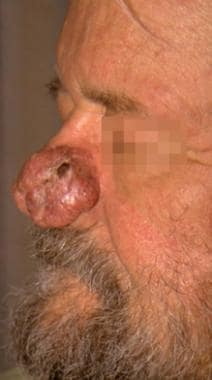 Case 6. Nodular basal cell carcinoma of the nose.