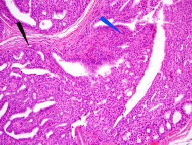Same small, peripheral intraductal papilloma (IDP