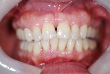Preoperative view of a diastema.