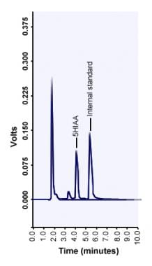 Chromatogram of 5-hydroxyindoleacetic acid (5-HIAA