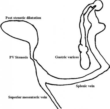 Line diagram of findings on portal venous phase an