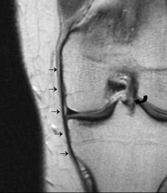 Proton density coronal image shows the anterior ve