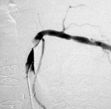 Selective arteriogram (same patient as shown in pr