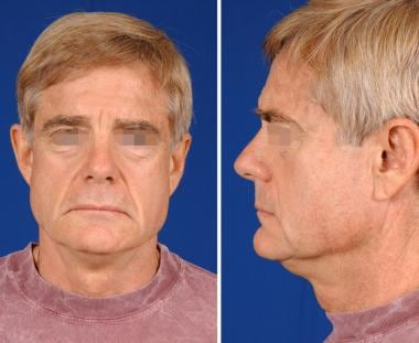 A 58-year-old man with premature aging, demonstrat
