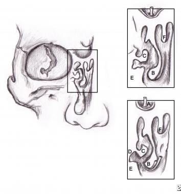 (A) Frontal sinus, (B) middle turbinate, (C) ethmo