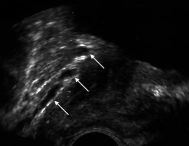 Sagittal image of a prostate. White arrows show da