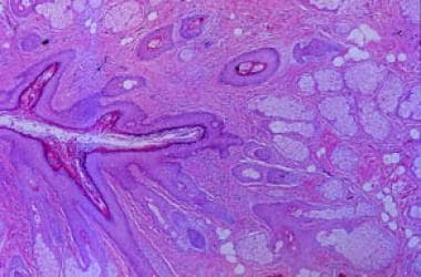 Higher magnification of central primary follicle a