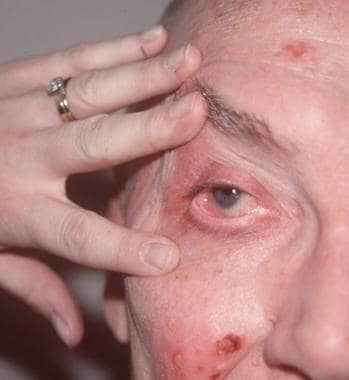 Persons with linear immunoglobulin A (IgA) dermato