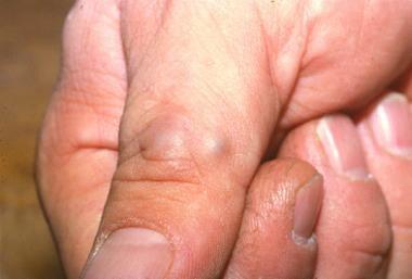 Glomus tumor.