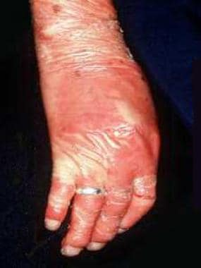 Nail dystrophy and inflammation of the nail folds.