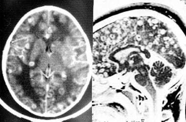 Neuroimaging in neurocysticercosis. Cysticercotic