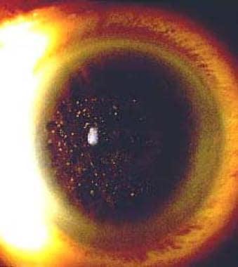granular corneal dystrophy background pathophysiology