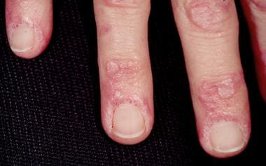 Gottron papules and nail-fold telangiectasia in pa