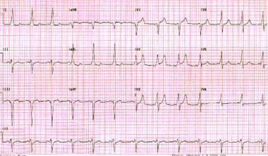 Wolff-Parkinson-White pattern. Note the short PR i
