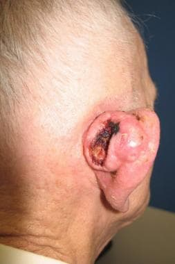 Large, neglected cutaneous squamous cell carcinoma