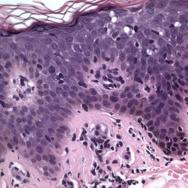 Mycosis fungoides with large, atypical T lymphocyt