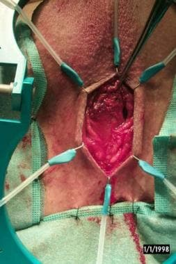 The patient is placed in the dorsolithotomy positi