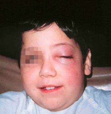 Preseptal cellulitis of the left eye. Courtesy of