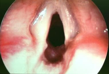 Endoscopic view of the same patient (9-year-old bo