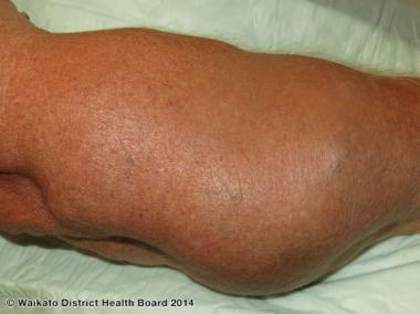 Multiple painful lipomas. Courtesy of Waikato Dist