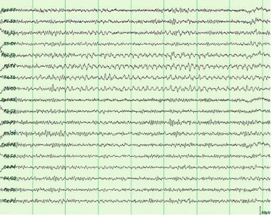 Rhythmic midtemporal theta of drowsiness (psychomo