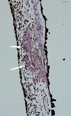 Histopathologic section of a Lisch nodule showing