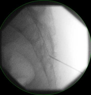 Transcaudal epidural catheter placement.