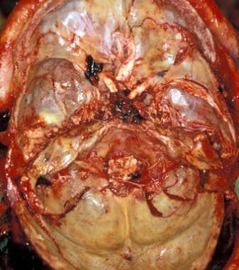 Fractures of the middle cranial fossa.