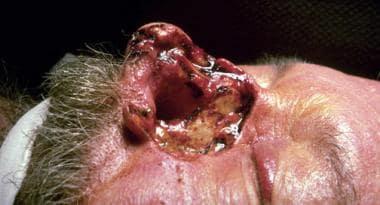 Case 6. Intraoperative view of heminasal defect wi