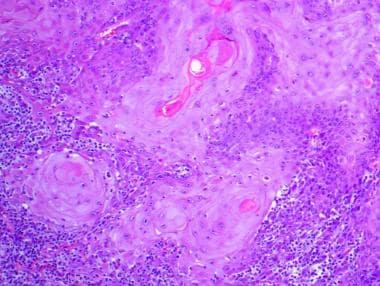 The invasive neoplastic cells have ample eosinophi