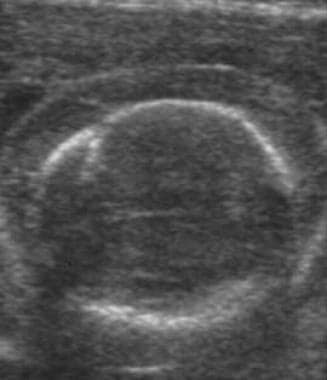 Fetal hydrops. Ultrasound image of scalp edema in