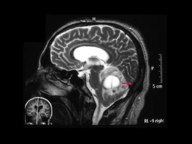 von Hippel-Lindau syndrome. Sagittal T2-weighted M