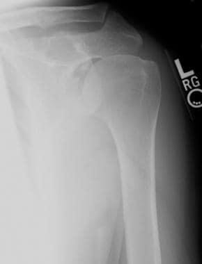 Anteroposterior radiograph of the left shoulder. T