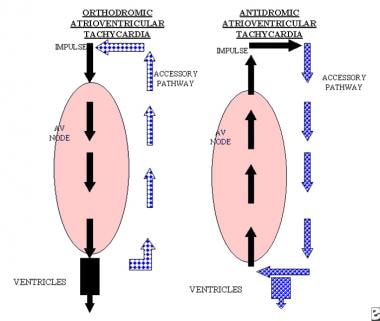 The left image displays the atrioventricular node