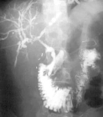 Percutaneous transhepatic cholangiogram shows dila