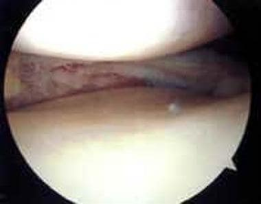 Arthroscopic view of medial meniscus after excisio