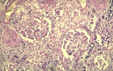 Focal glomerulonephritis with crescent formation o