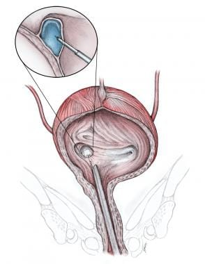 View of a ureteral orifice before and after endosc
