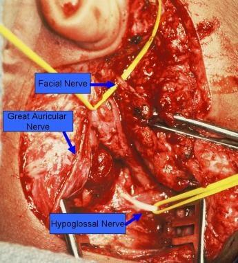 JJs hypoglossal facial nerve jump graft Pls not