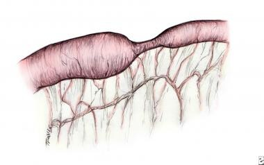 Intestinal stenosis. Dilated prestenotic bowel is