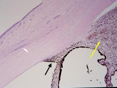 Histopathologic section of an eye from a patient w