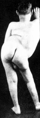 A patient with severe, congenital hyperlordosis.