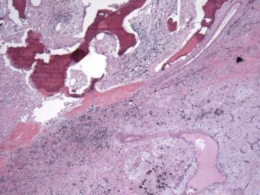 Photomicrograph demonstrates heterologous bone for