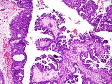 Papillary ductal carcinoma in situ (DCIS) (200×).