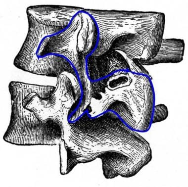 Drawing of 2 lumbar segments viewed from an obliqu