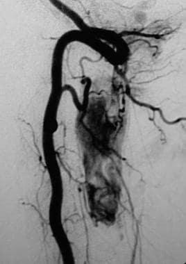 Spinal angiogram demonstrates a large cervical hem