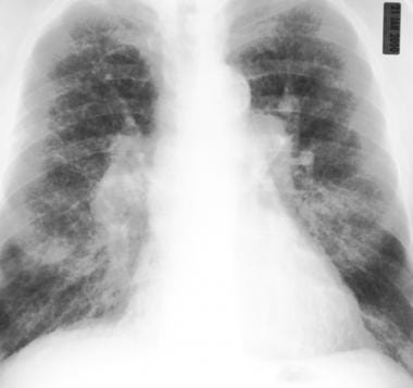 Frontal chest radiograph in the same patient as in