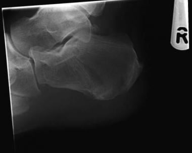 Calcaneus, fractures. Plain radiograph.