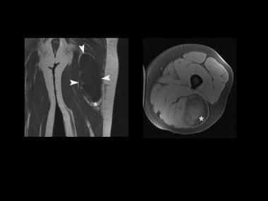 Magnetic resonance imaging (MRI) scans (coronal, T